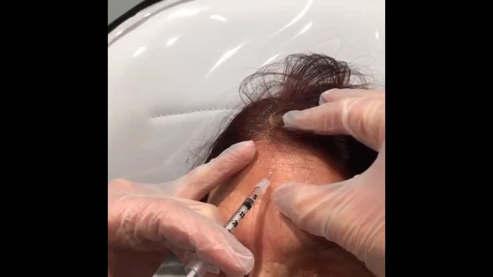 Skinpossible Laser & Light Solutions Ltd - Video 2