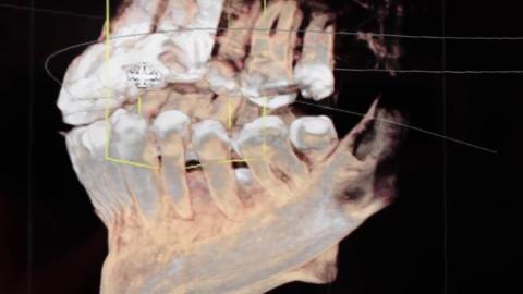 Clinique Dentaire Pelletier - Vidéo 1