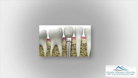 video Sierra Springs Dental Airdrie